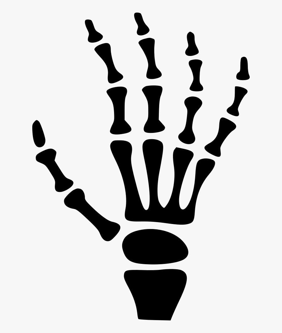 X Ray - Skeleton Hand Cartoon, Transparent Clipart