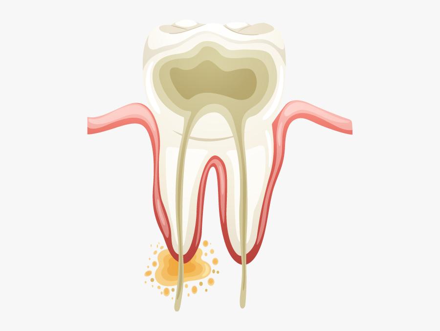 Cavity Treatment - Illustration, Transparent Clipart