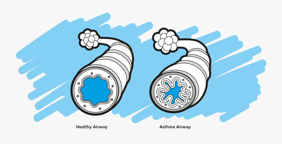 Clip Art Asthma Pictures - Asthma Relievers And Preventers, Transparent Clipart