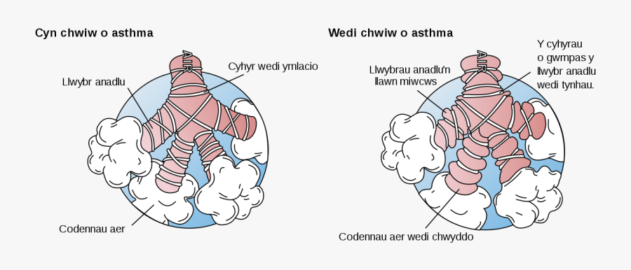 Asthma Before And After, Transparent Clipart