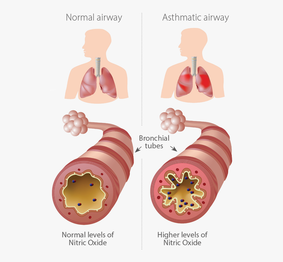 Infographic Of Normal And Asthmatic Airways - Whats In An Inhaler, Transparent Clipart