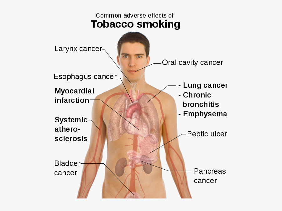 Transparent Human Body Clipart - Diseases In Circulatory System Caused By Smoking, Transparent Clipart